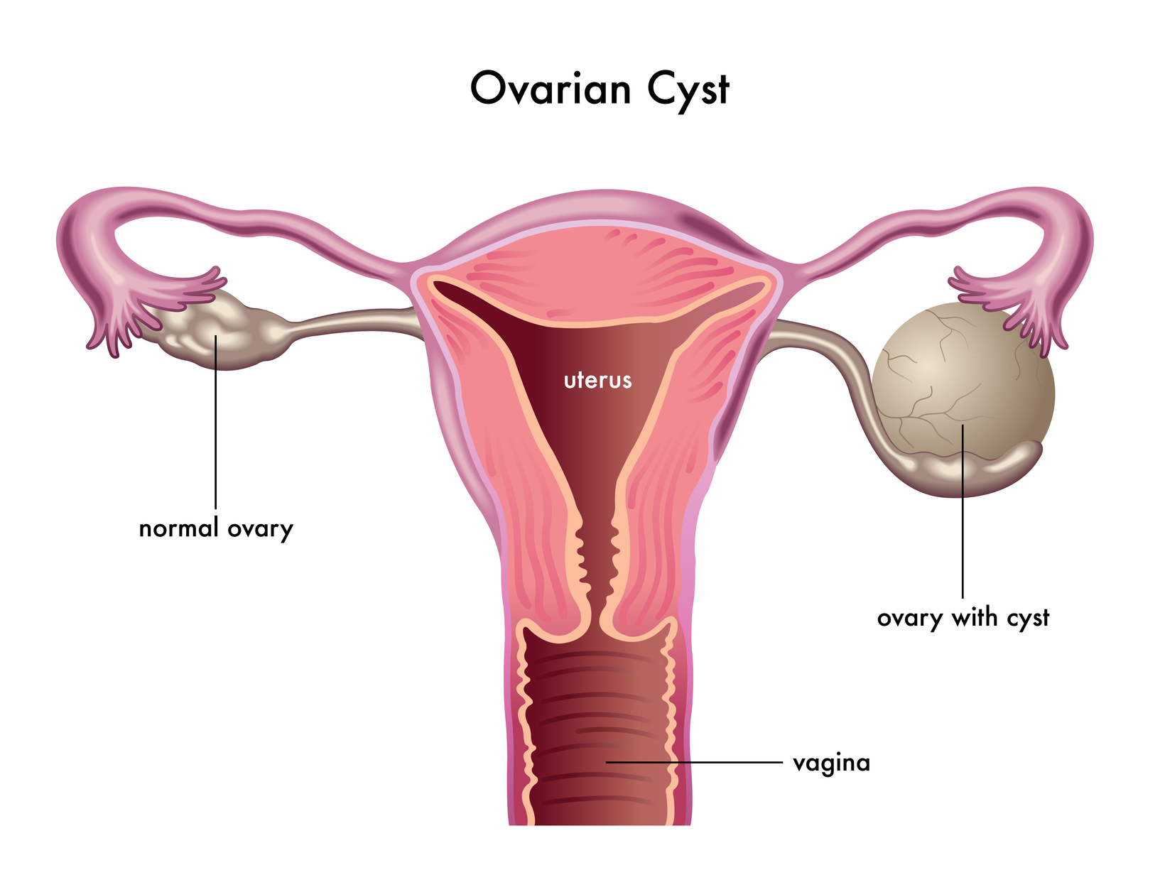 Introduction to Ovarian Cysts