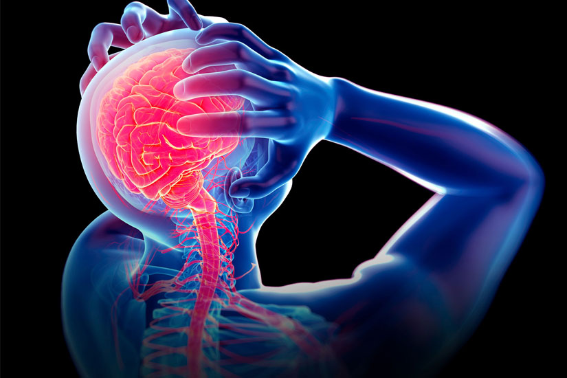 Homeopathy and Migraines