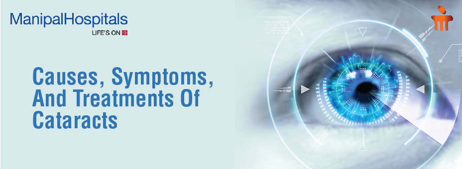 Causes, Symptoms And Treatments Of Cataracts