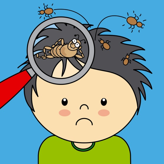 Head Lice -What Parents Should Know