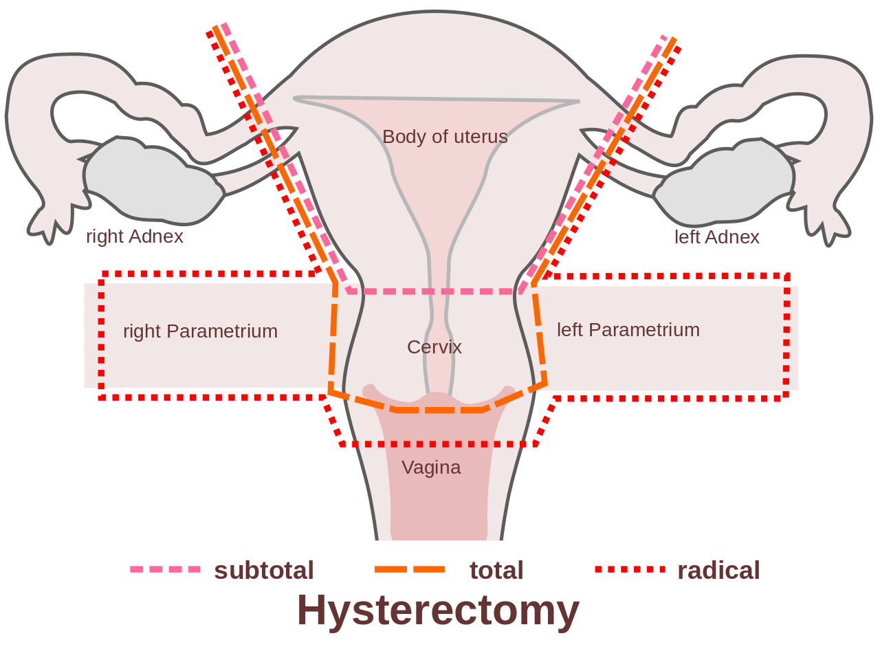 During a total hysterectomy-Endometriosis