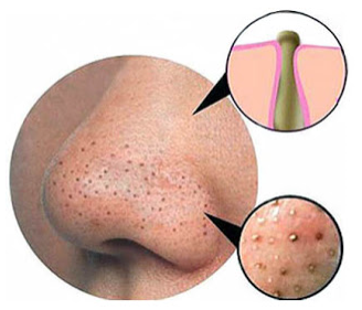 Blackheads: Causes, Treatment & Prevention