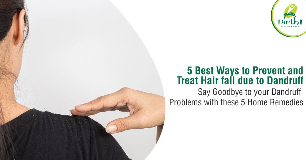 5 Effective Home Remedies for Dandruff