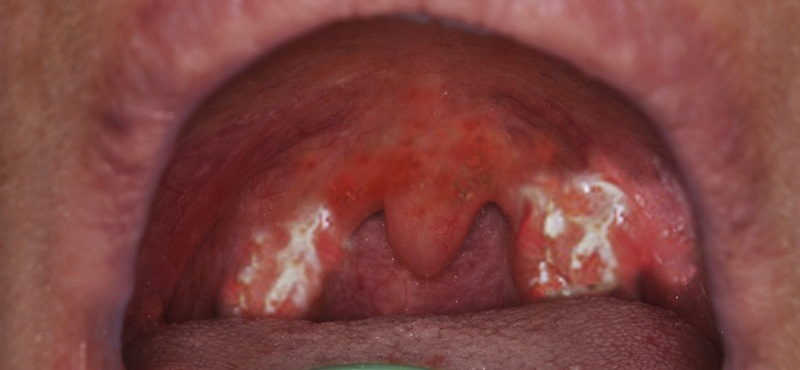 White Patches in Throat Treatment
