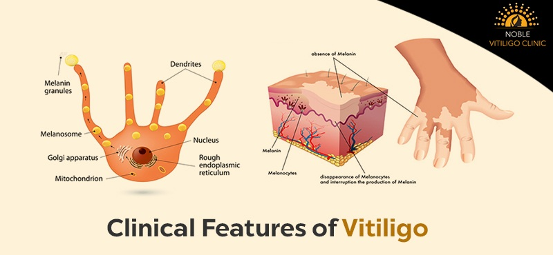 What are the Clinical Features of Vitiligo and treatment