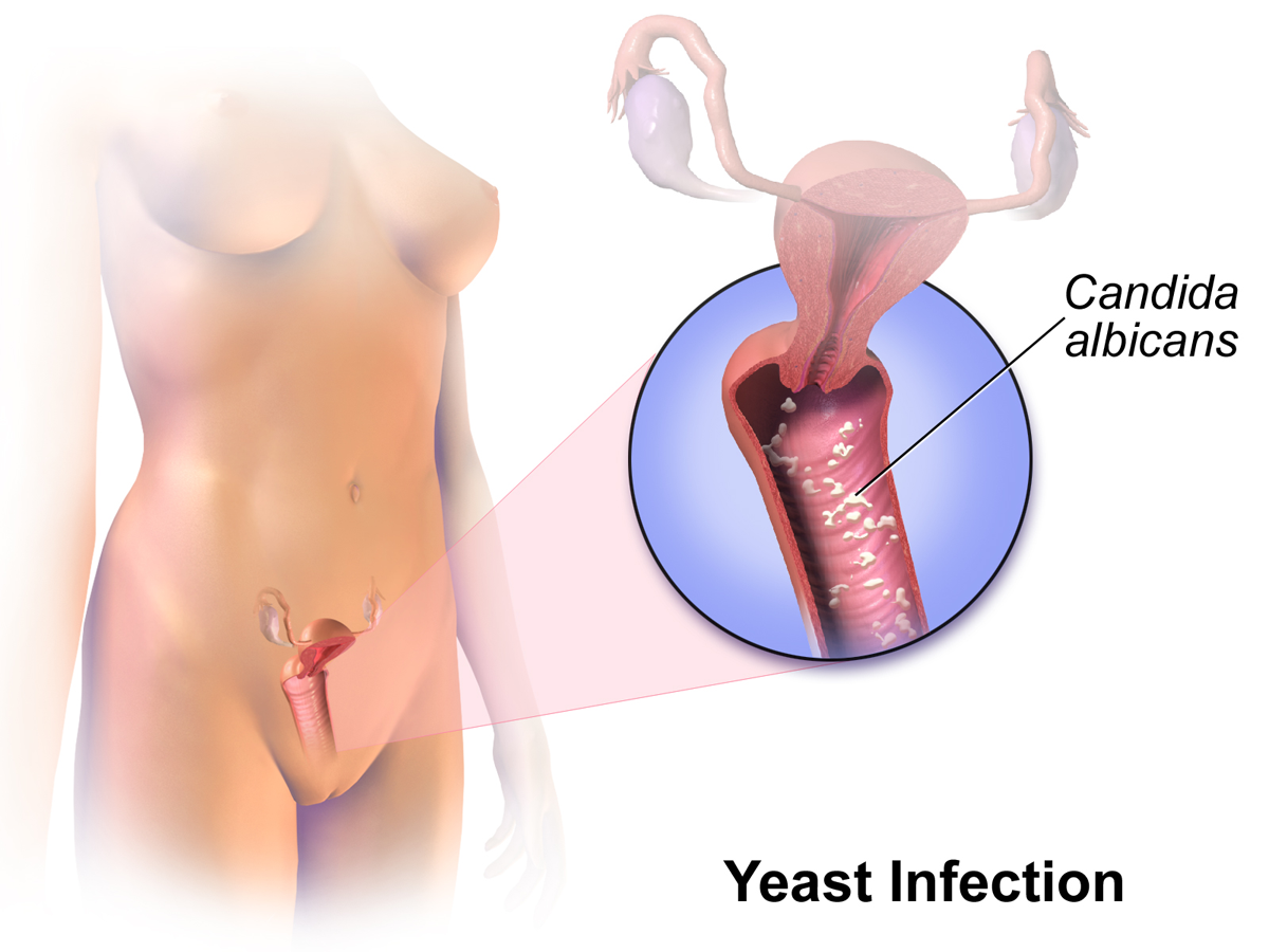 All you need to know about Vaginal Yeast Infection