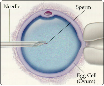 What is Intracytoplasmic Sperm Injection: ICSI?