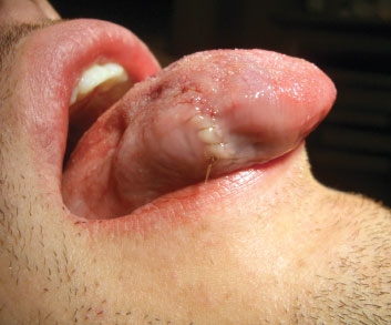 What is suturing of oral mucosa?