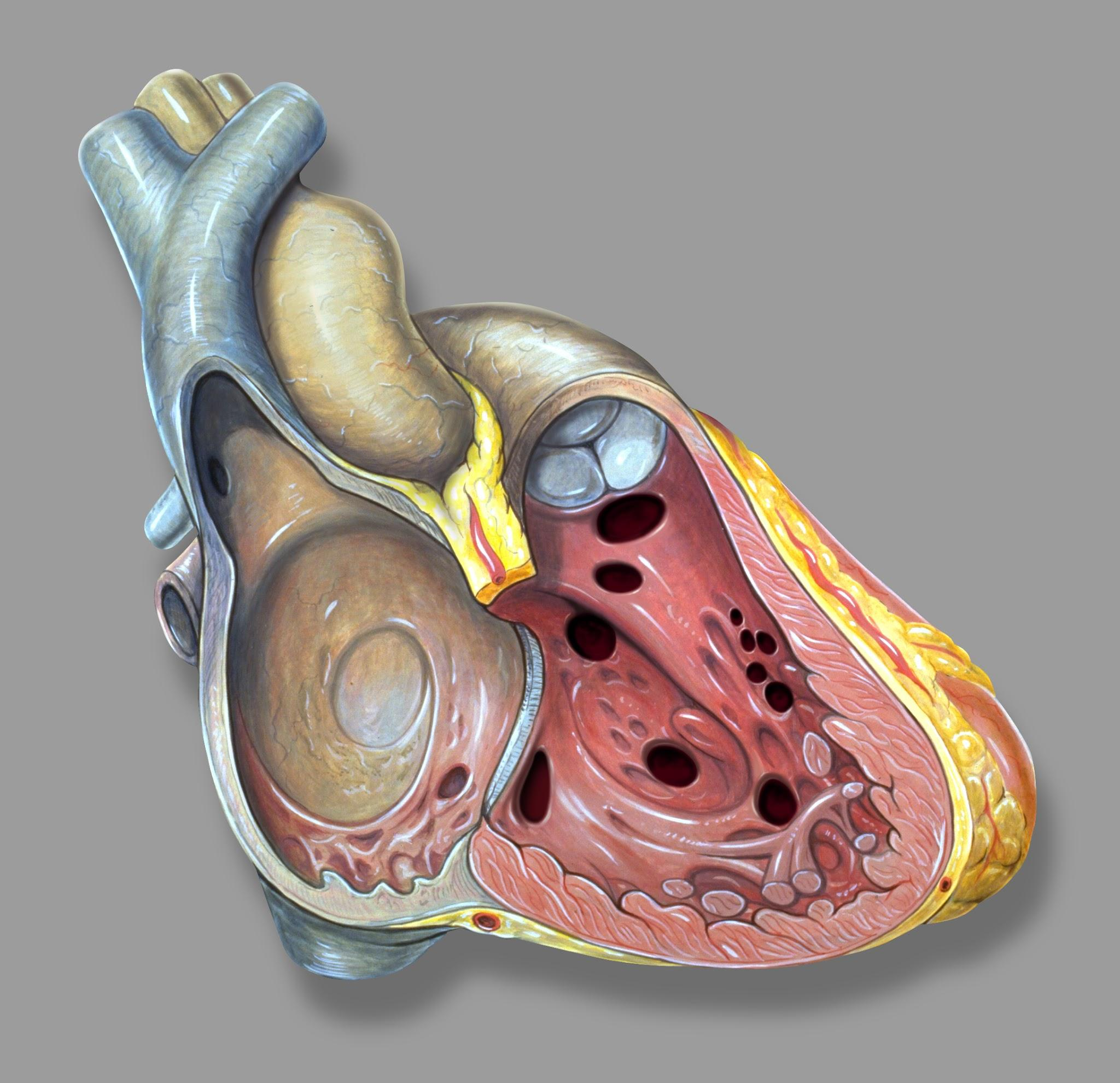 Ventricular Septal Defect: Symptoms, risks and prevention