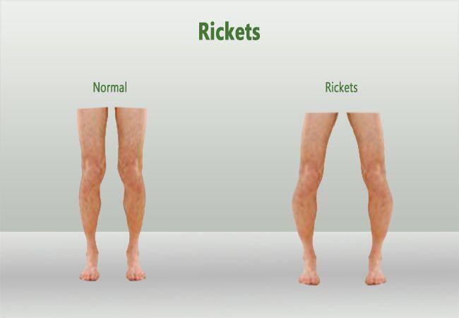 Rickets: Causes, Symptoms and Treatments