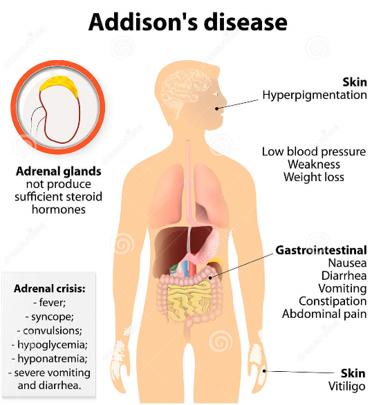 Homeopathy for Addison's disease in humans