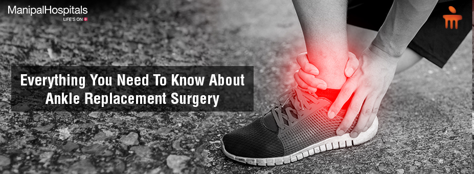 Everything You Need To Know About Ankle Replacement Surgery