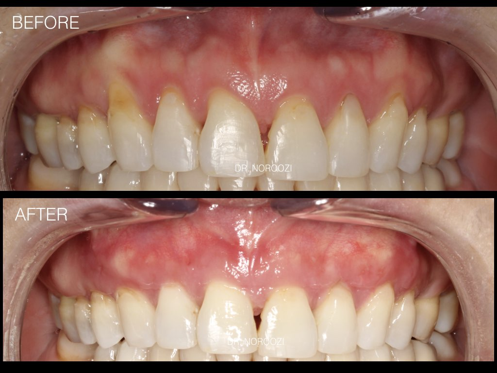 What is Gum Tissue Graft?