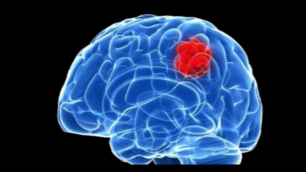 What is the First Sign of the Brain Tumor?