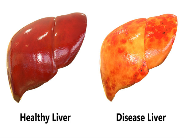 What is meant by Liver Cirrhosis?