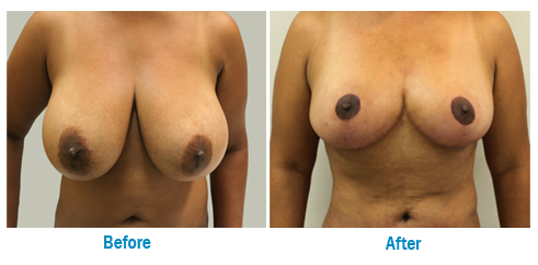 What is BREAST REDUCTION-Female Surgery