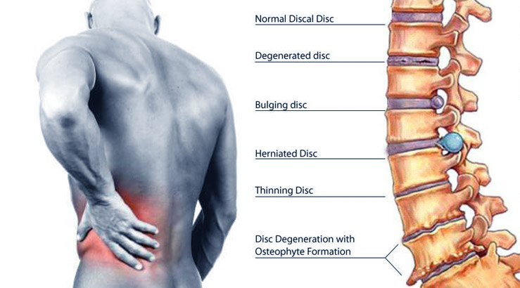 Diagnosis of a Back Pain