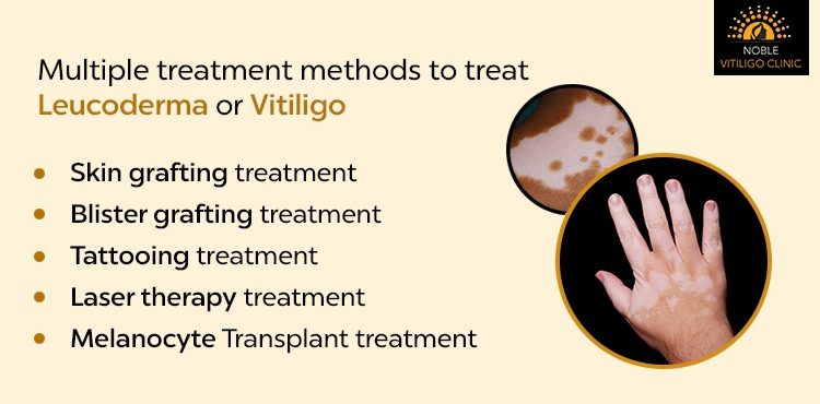 Multiple Treatment Methods To Treat Leucoderma Or Vitiligo