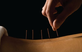 What is Accupuncture?