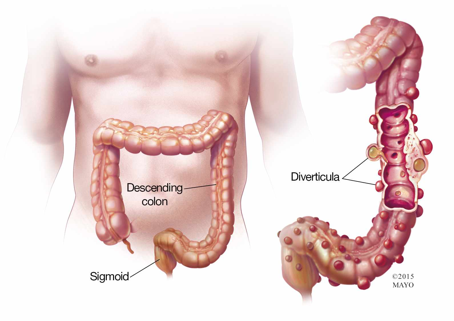 Diverticulitis: Symptoms and Causes