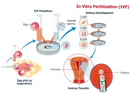 All you need to know about IVF- Procedure