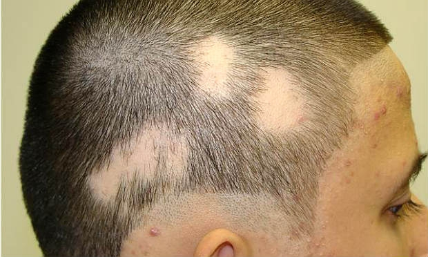 Losing patches of hair-Alopecia Areata?