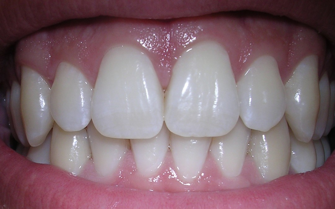 What is Tooth Erosion?