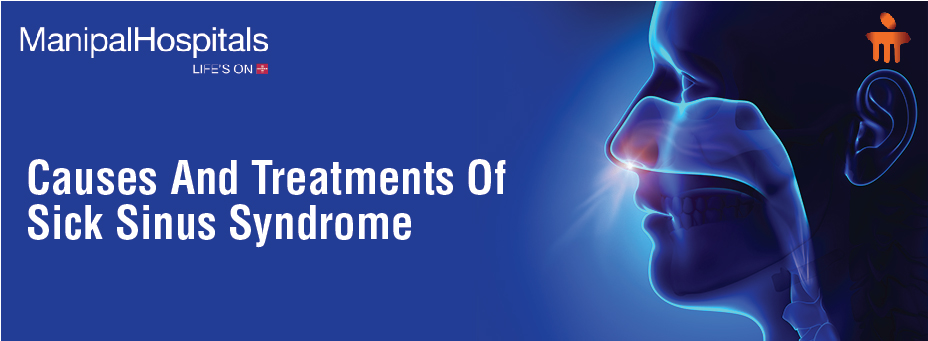 Causes And Treatment Of Sick Sinus Syndrome
