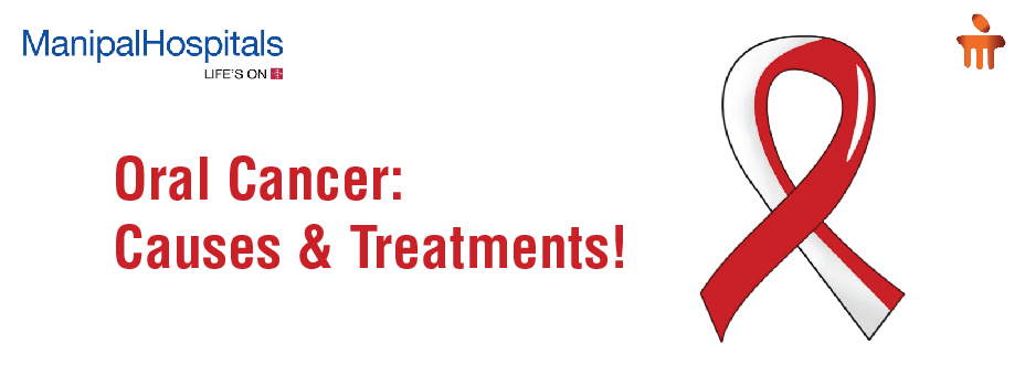 Oral Cancer: Causes & Treatments!