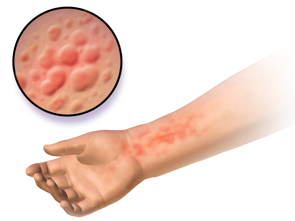 What is Candidiasis of the skin?