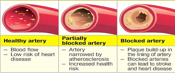 Silent Signs of Clogged Arteries