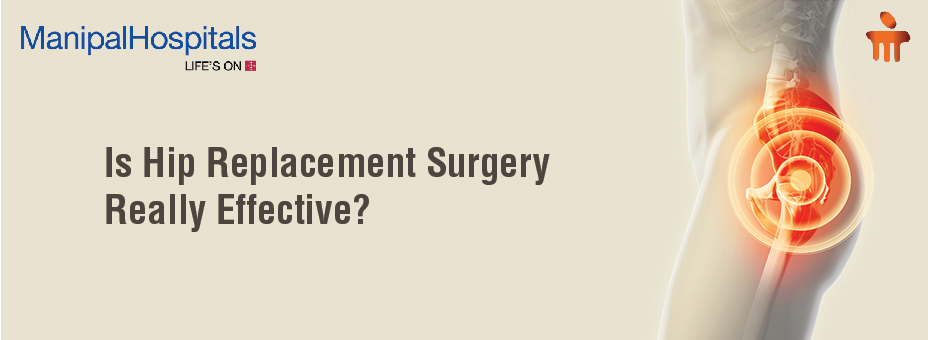 Is Hip Replacement Surgery Really Effective?