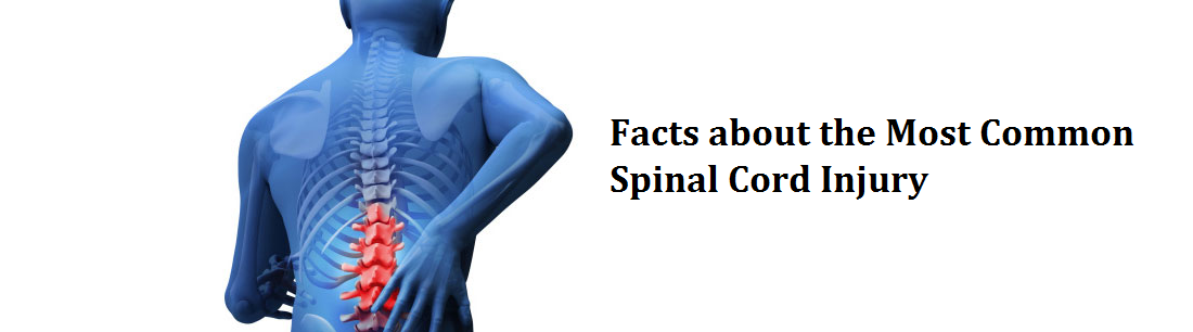 Central Cord Syndrome – The Most Common Spinal Cord Injury