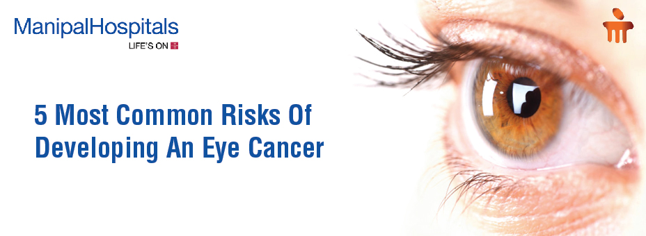 5 Most Common Risks Of Developing An Eye Cancer