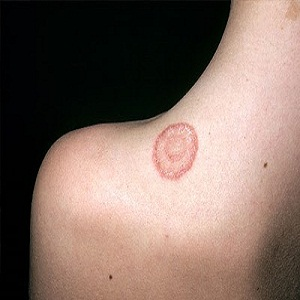RINGWORM INFECTION: TREATMENT AND PREVENTION