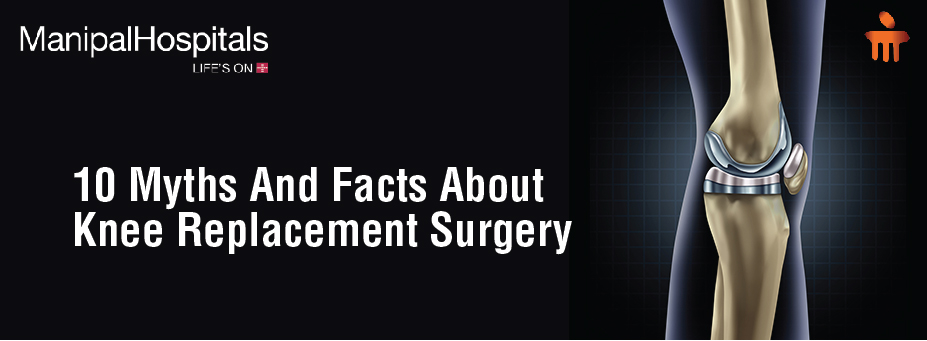 10 Myths And Facts About Knee Replacement Surgery