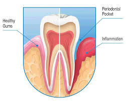 Inflammation around the Tooth-Periodontitis