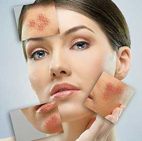 HOMEOPATHY FOR ACNE TREATMENT