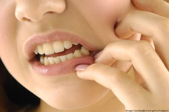 7 Common Kinds of Oral Infections