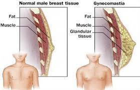 What is gynaecomastia?