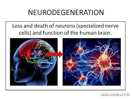Brain Disorders-Neurodegenerative Diseases