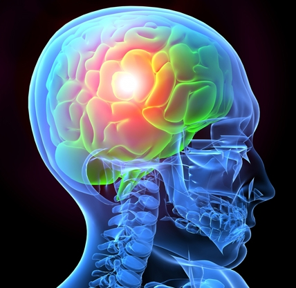 What is a traumatic brain injury?