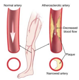 CAUSES OF PERIPHERAL ARTERY DISEASE