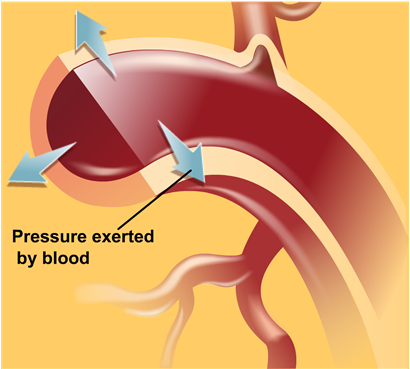 Hypertension, or high blood pressure what is it?