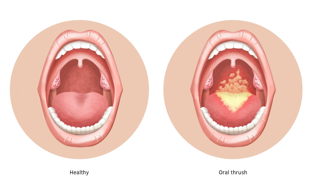 What is the cause of Oral Candidiasis?