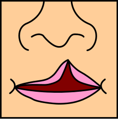 Cleft lip and cleft palate: Causes, treatment, and risks