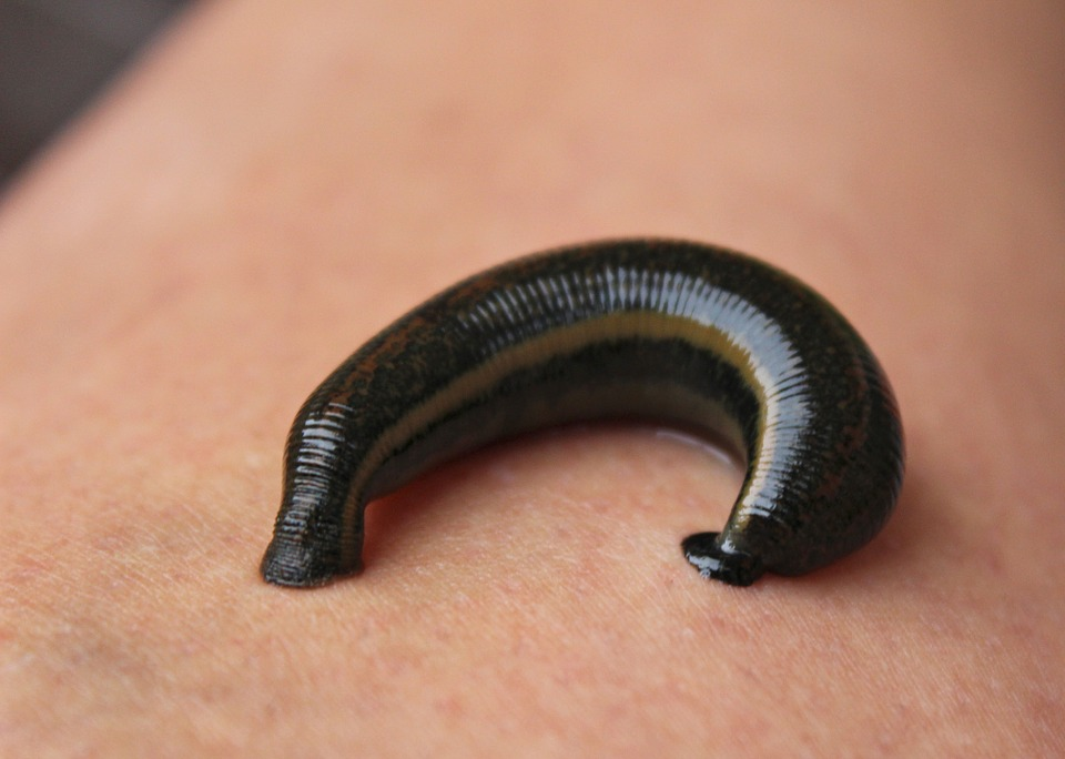 What is leech therapy and how does it work?