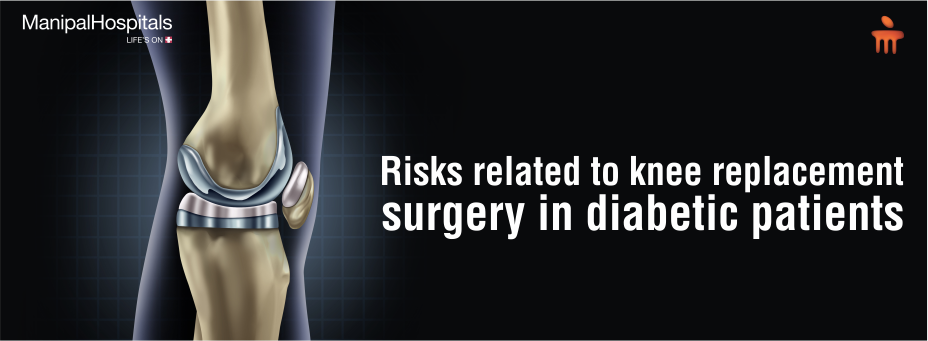 Risks Related To Knee Replacement Surgery In Diabetic Patients