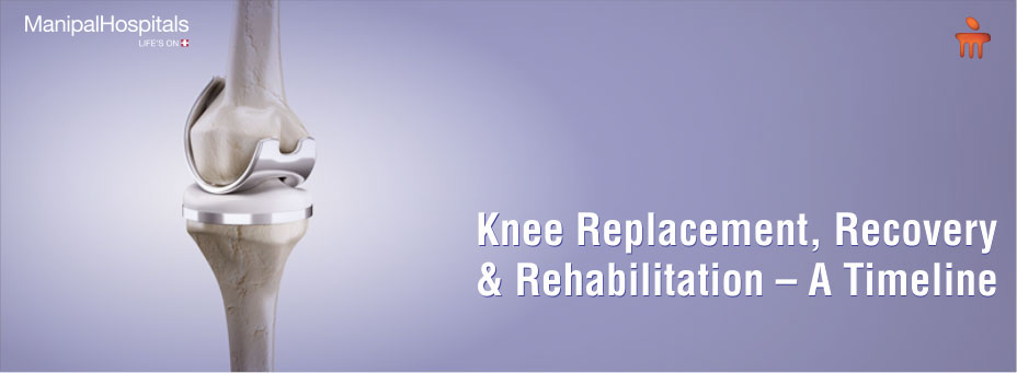 Knee Replacement, Recovery And Rehabilitation – A Timeline