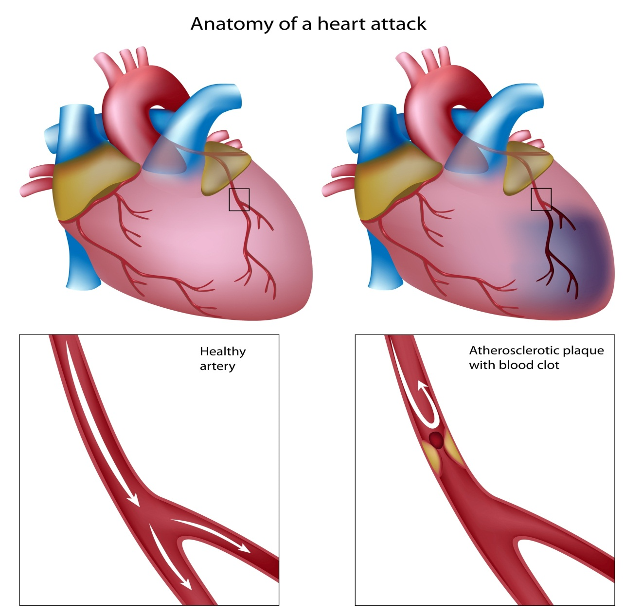 MYOCARDIAL INFARCTION-Heart attack, technically known as myocardial infarction